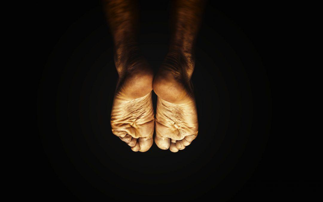 Ostroga piętowa – przyczyny, objawy i leczenie