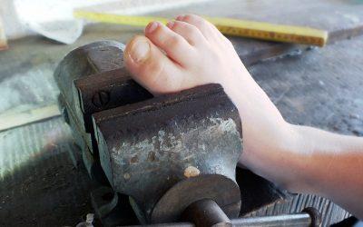 Płaskostopie podłużne nabyte – przyczyny bólu stóp